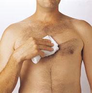 Implanty en el pecho kista